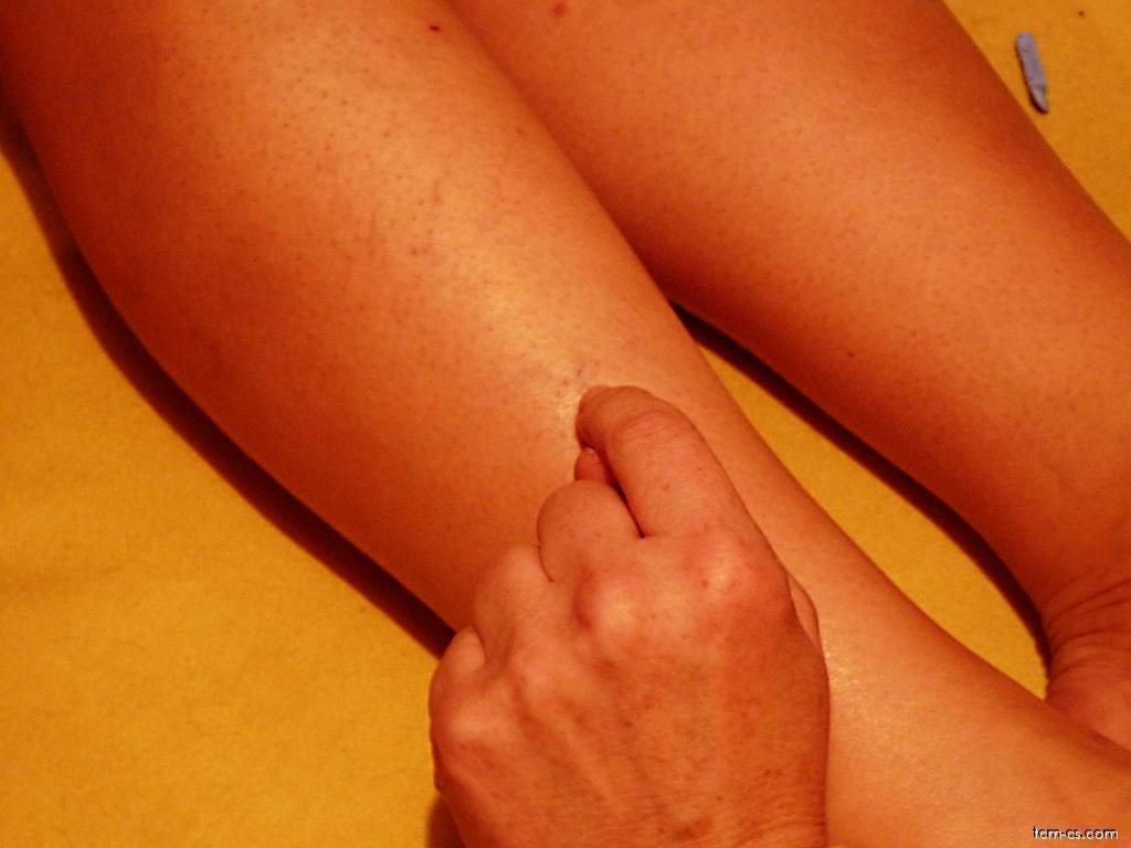 Akupunktura v kosmetice - metličky