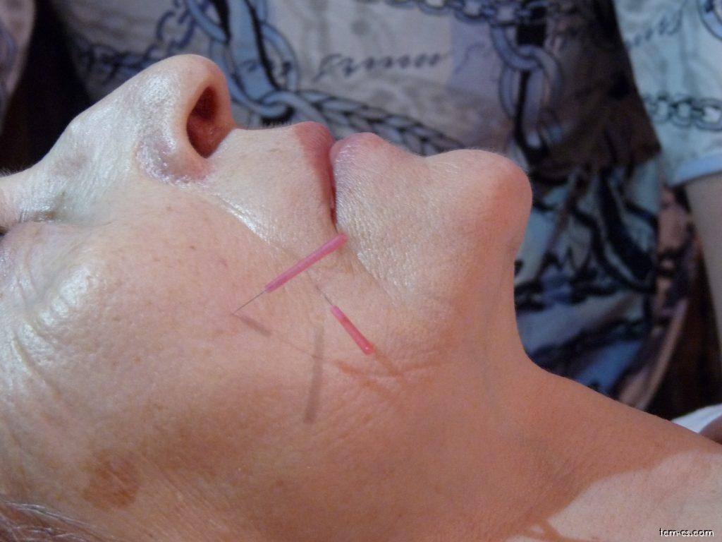 Akupunktura v kosmetice 3