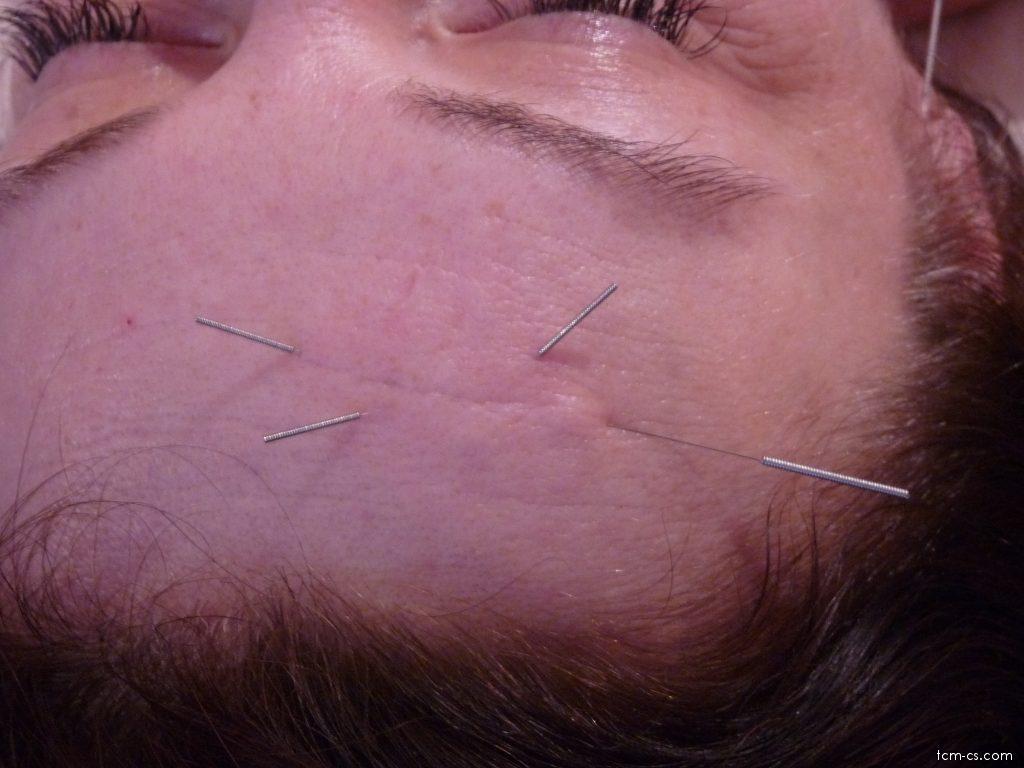 Akupunktura v kosmetice 1