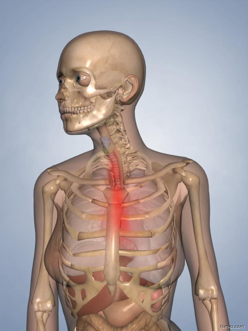 Pálení žáhy Pyróza a gastroesofageální reflux GER