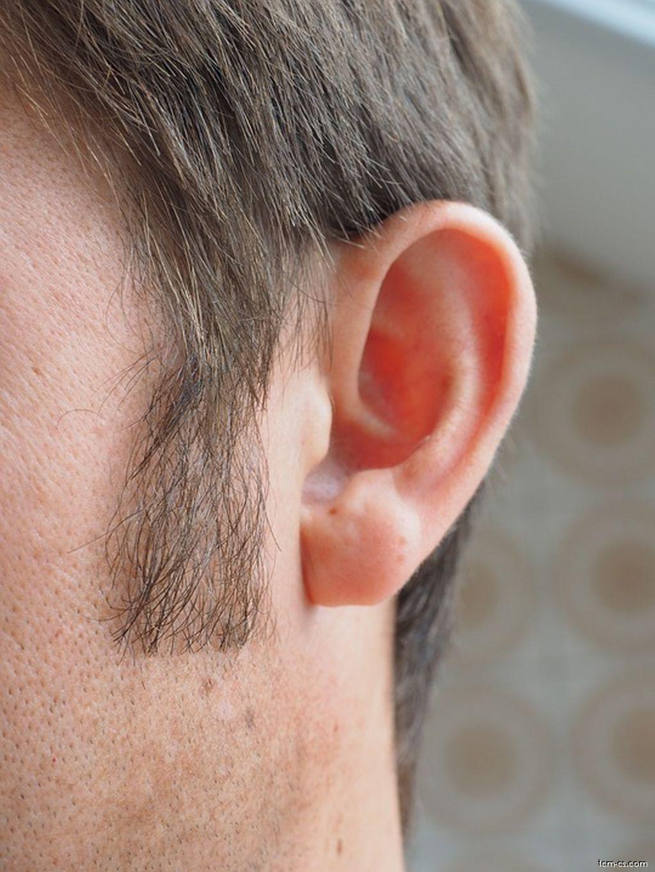 Tinitus - šumění v uších