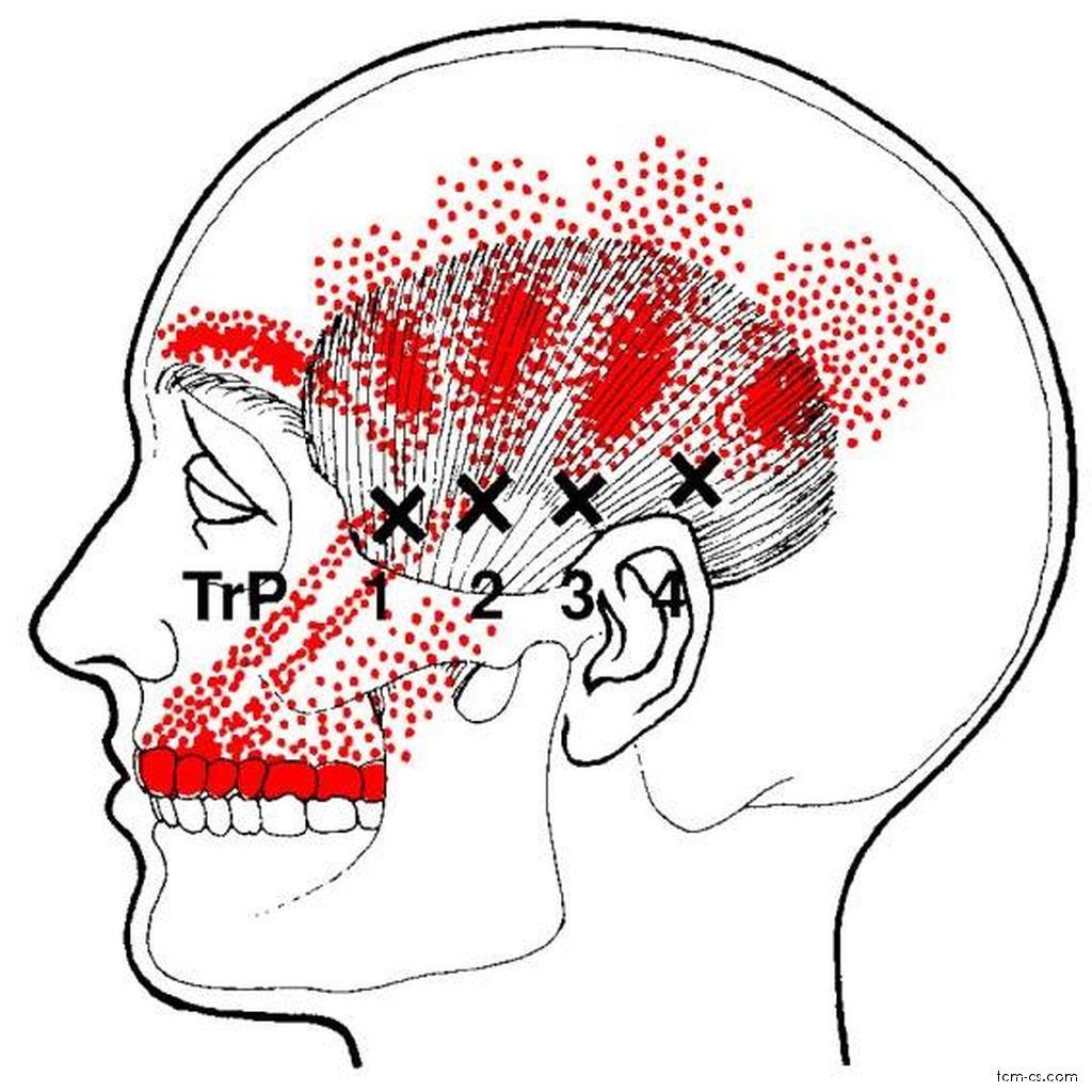 Bolesti čelisti a zubů